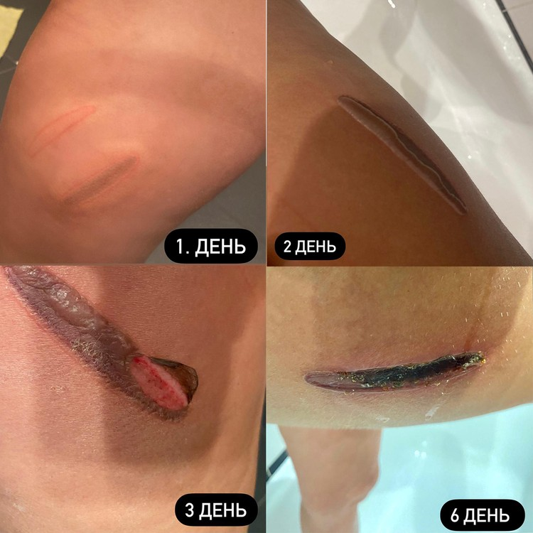 Динамика развития раны после процедуры