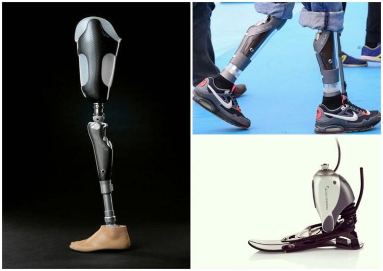 Такие бионические протезы планируют приобрести Аркаше. Каждый - 3,5 млн рублей. Фото: предоставлено Марией Петровой
