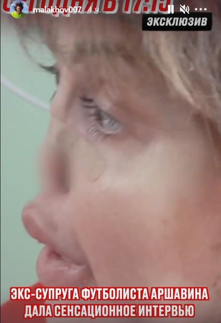 Бывшая жена футболиста Андрея Аршавина лежит в больнице.