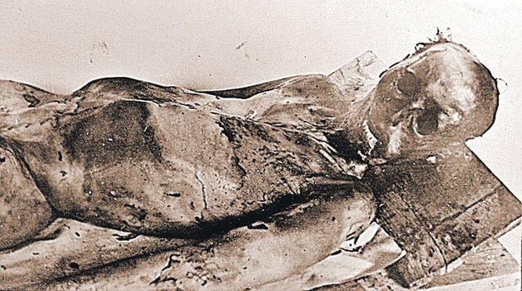 У Семена Золотарева переломы ребер (со 2-го по 6-е) с правой стороны. Второе ребро, которое находится под ключицей, скорее всего, могло быть сломано от сильного удара.