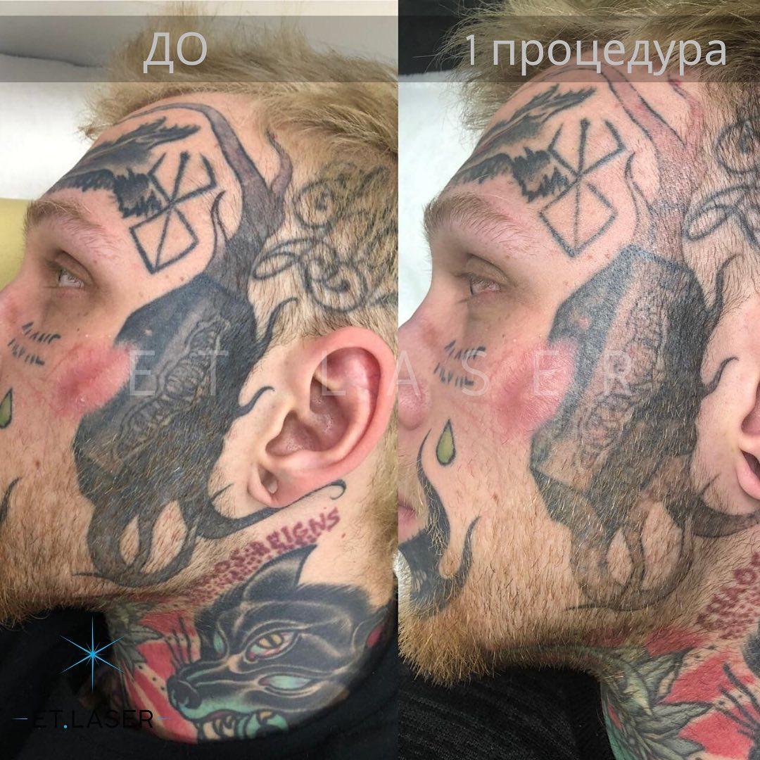 Результат после 1 процедуры, прошёл 1 месяц. Денис Шальных проходил сегодня первую процедуру на других своих татуировках
